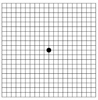 image relating to Amsler Grid Printable named On the internet Amsler Grid Check for Macular Degeneration and Other
