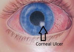 CornealUlcer
